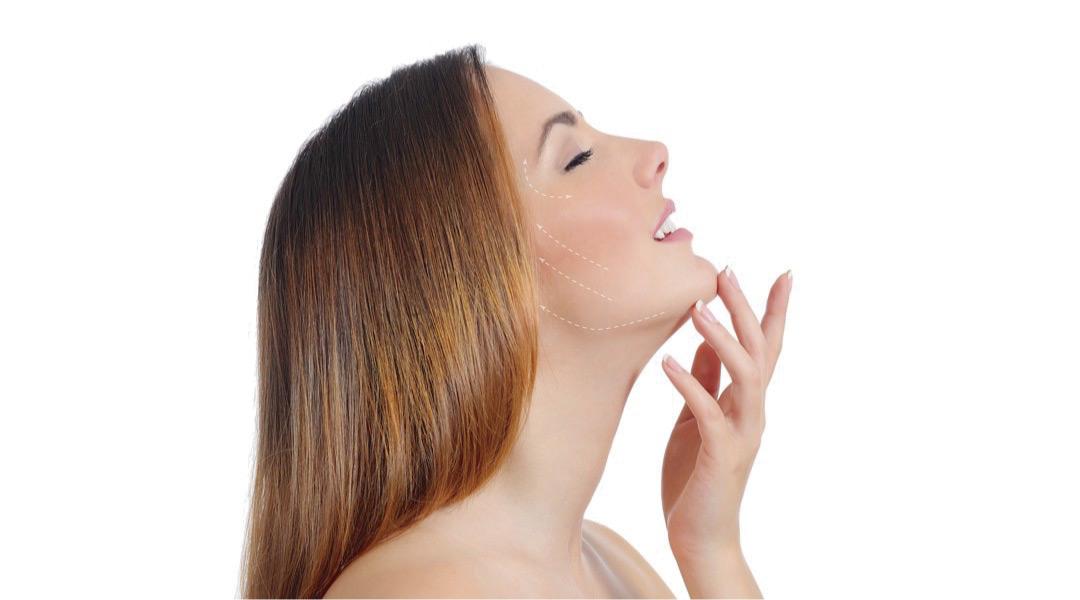 Elimina el exceso de piel en la cara, Ritidoplastia en Pereira.